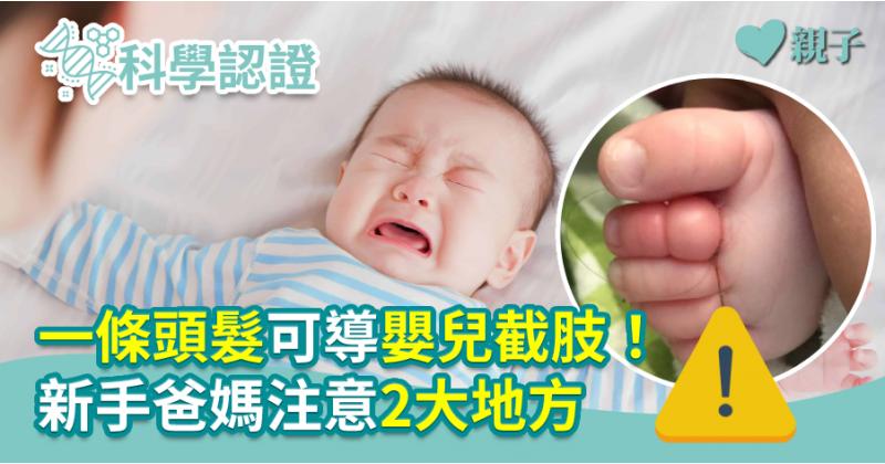 【醫健爸媽】一條頭髮可導嬰兒截肢!新手爸媽注意2大地方