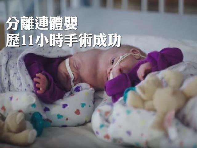 【分離連體嬰】歷11小時手術成功